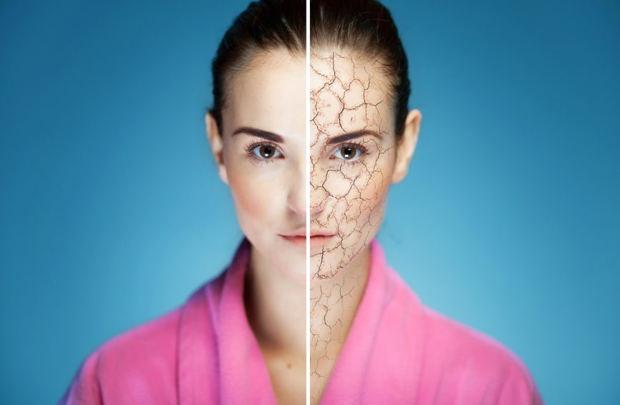 Can-Water-Softeners-Cause-Skin-Problems