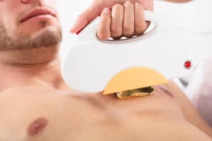 laser hair removal cost chest